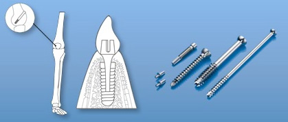 Medical Equipment Components